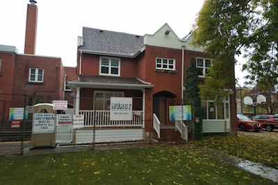 MS OCT—Reconstruction 3 manse at first Calgary